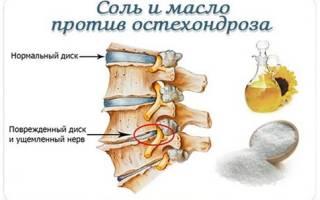 Готовим массажное масло от шейного остеохондроза